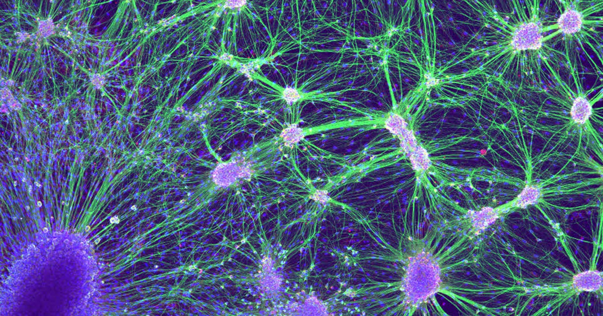 Snapshots of Life: Wired for Nerve Regeneration – NIH Director\'s Blog