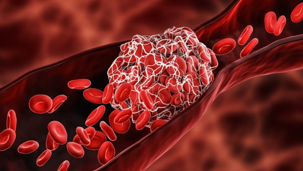 Can Blood Thinners Keep Moderately Ill COVID-19 Patients Out of the ICU? –  NIH Director's Blog