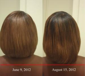 la croissance des cheveux biotine