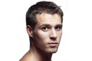 Ist Glatze Rasieren Die Optimale Lösung Bei Haarausfall? DirektHaar