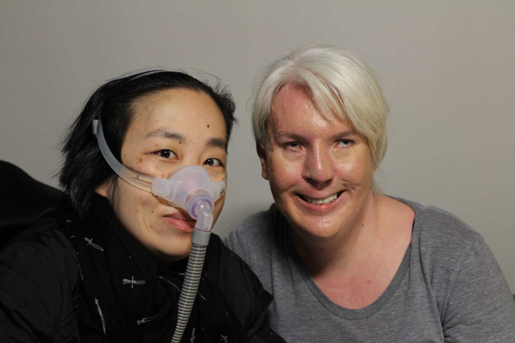 On the left, Alice Wong an Asian American woman wearing a black jacket and black scarf with little white daggers. She is wearing a mask over her nose attached to a gray tube which is connected to her ventilator. On the right is Jennifer Justice, young white woman with very light long blonde hair pulled back. She is wearing a heather gray scoopneck shirt. She is smiling at the camera.