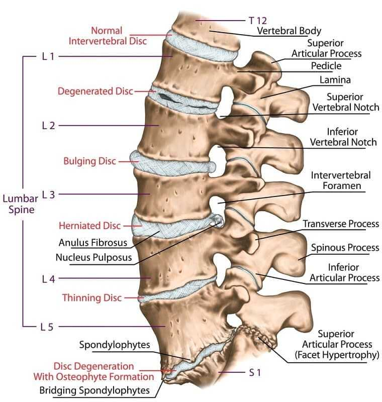 Spinal Fusion for Degenerative Disc Disease (DDD)