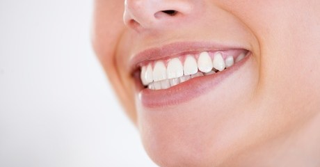 Braces for Lower or Upper Jaw