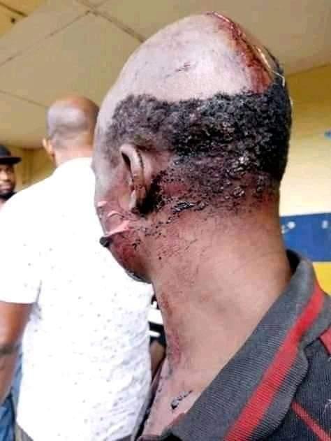 Oshiri, another Ebonyi community clashes with Fulani herdsmen