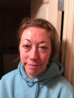 Alicia Jackman-Puffy Eyes and Face