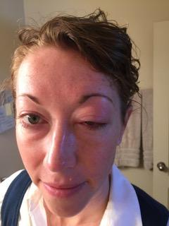 Alicia Jackman-Swollen Eye