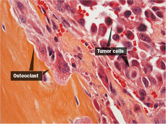 Tumor cells spread toward bone