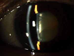 Figure 1 – Slit-lamp photo of a visually significant cataract.
