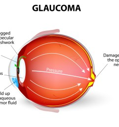 glaucoma diagram [ 1000 x 920 Pixel ]