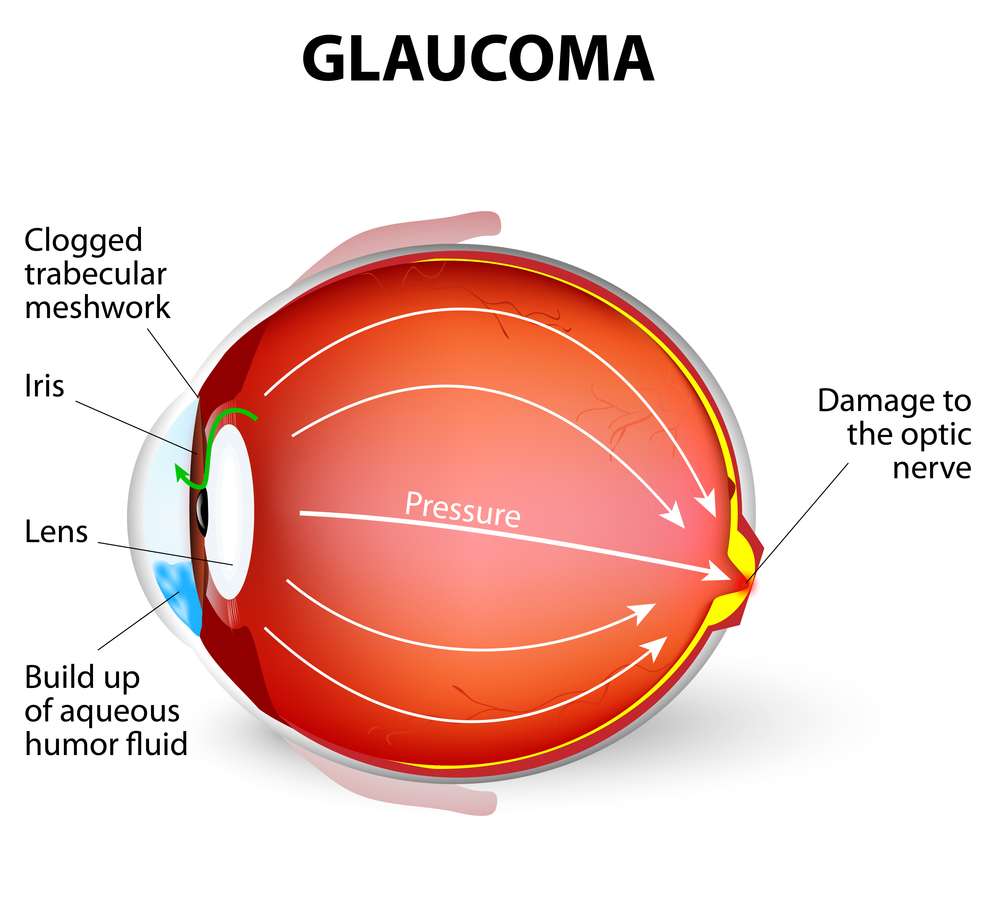 hight resolution of glaucoma diagram