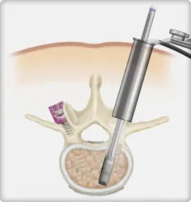 Minimally Invasive Fusion