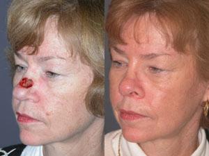 mohs surgery scar - pictures photos