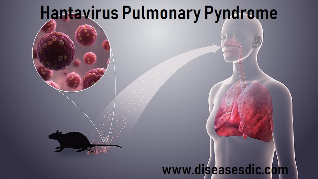 Hantavirus Pulmonary Syndrome – Risk factors and prevention. -