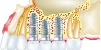 İmplan Diş Yapımı Ne Kadar Sürer