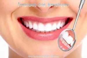 implant diş ameliyatı