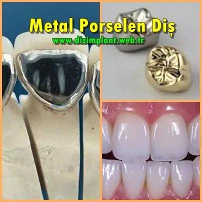 Metal Porselen Diş