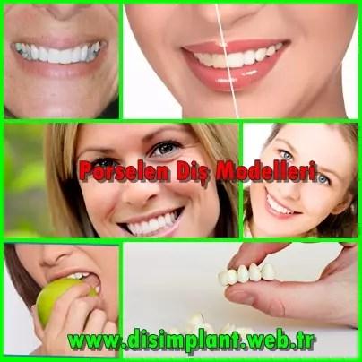 Porselen Diş Modelleri