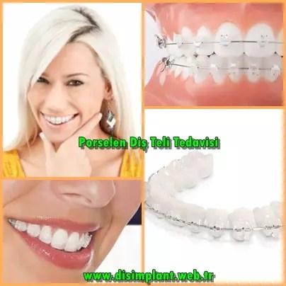 porselen diş teli nasıdır