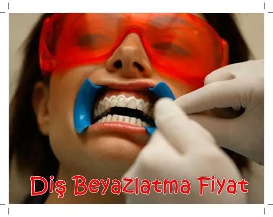 Diş Beyazlatma Fiyat