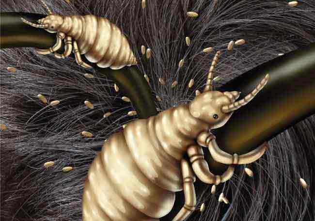 Pediculosis1.jpg.