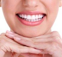 Blanqueamiento dental, de los tratamientos más solicitados a los dentistas en Madrid