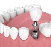 Descubre los beneficios más importantes de los implantes dentales