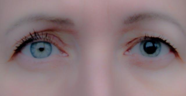 svart flimmer i ögonen