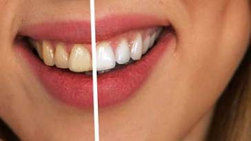 tooth 2414909 640