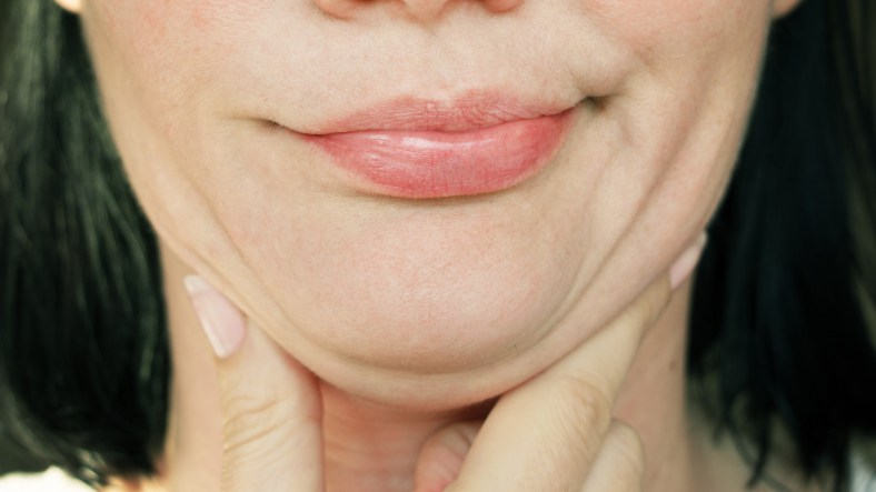 Kybella: Your Questions, Answered 1