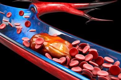 Blood Clot Medication: Going Beyond Warfarin 3