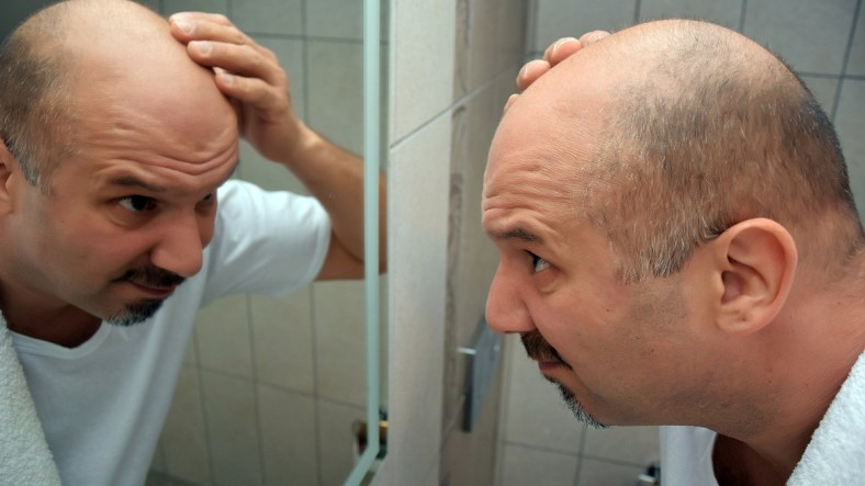What Are The Stages of Male Pattern Baldness? 4