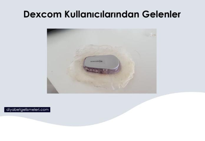 Dexcom G6 Kullanıcılarından Gelenler