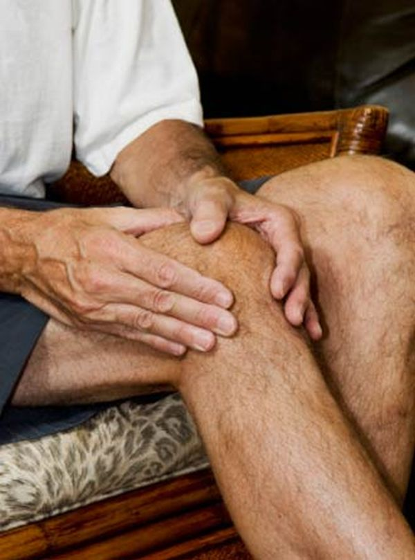 Arthritis in joints