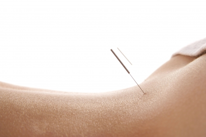 Lower back acupuncture