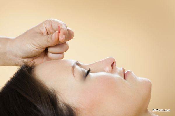 Closeup of therapist giving acupuncture treatment to female customer in beauty spa