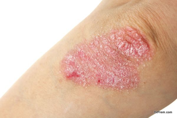 Psoriasis on elbows. Isolated on white