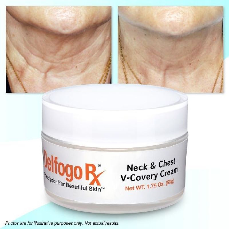 Delfogo Rx Neck & Chest Cream
