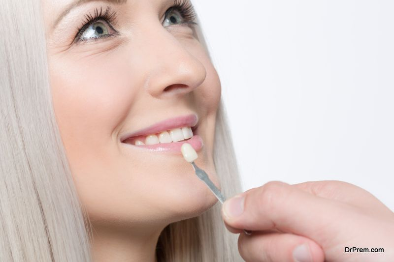 Tooth-Veneers
