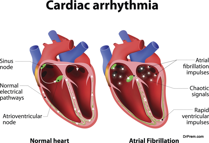 Cardiac-Arrhythmia
