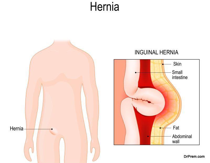 7-precautions-undergoing-hernia-surgery