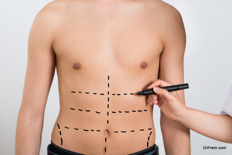 Weight-Loss-Surgery.