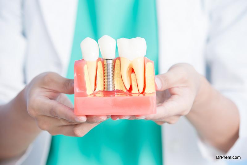 Dental-Implant