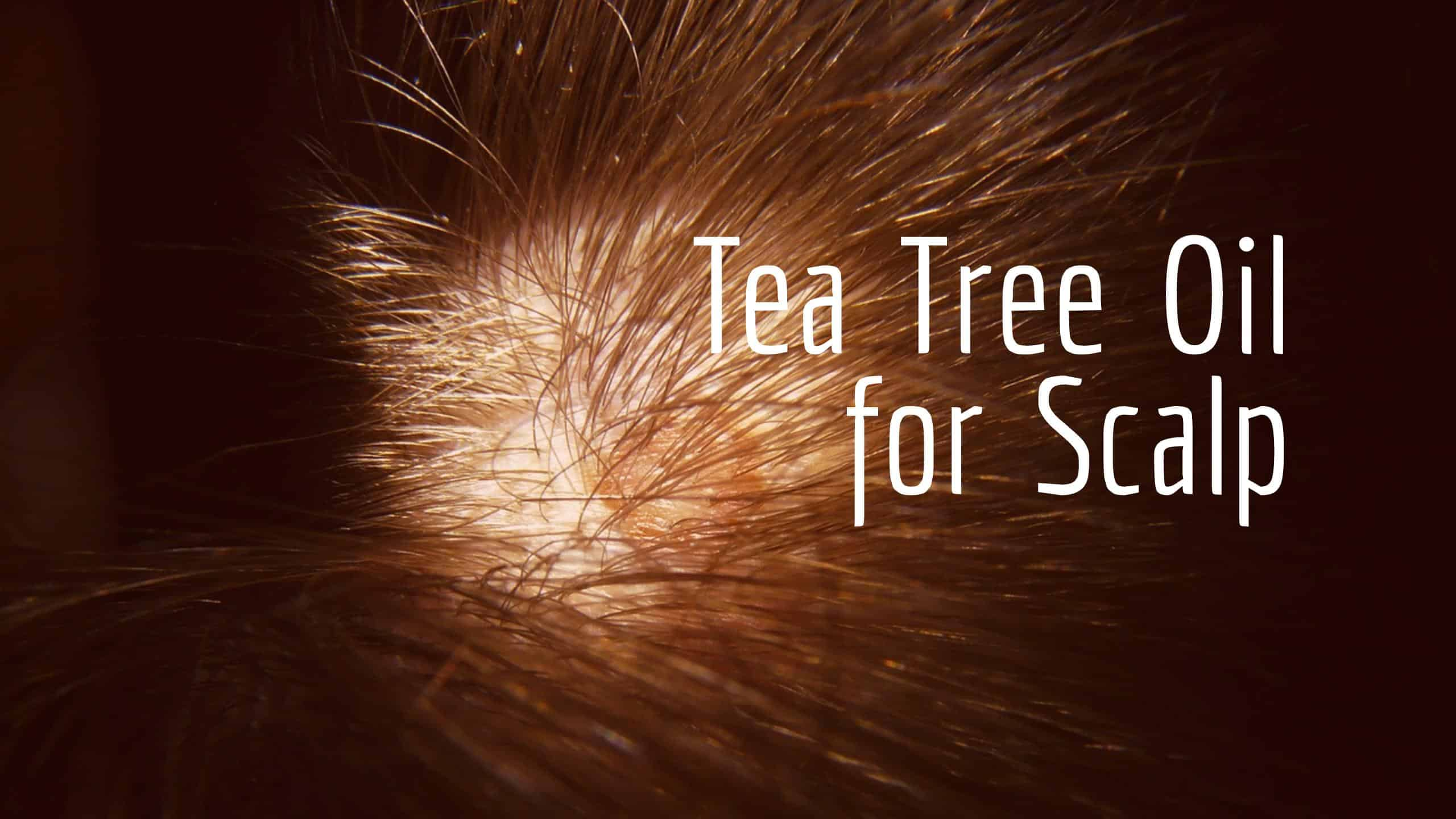 Tea Tree Oil For Scalp Problems