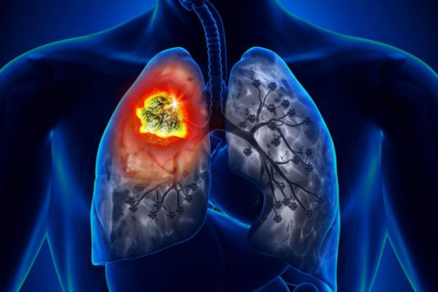 image via European Pharmaceutical Review