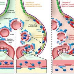 Bowman S Capsule Diagram Western Unimount Plow Wiring Jci Cd8 Cells And Glomerular Crescent Formation Outside In As Schematic Summarizing Inside Out Elements Of Glom