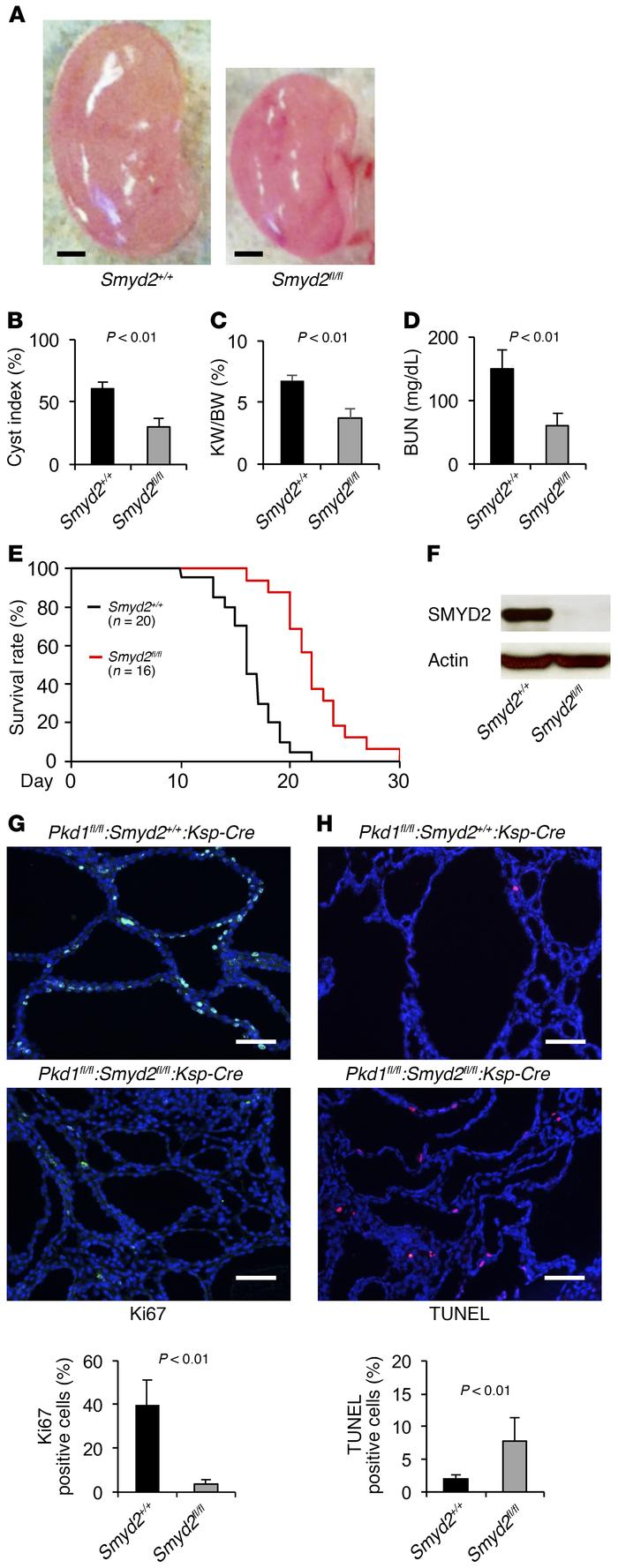 hight resolution of double conditional knockout of smyd2 and pkd1 delayed renal cyst formati