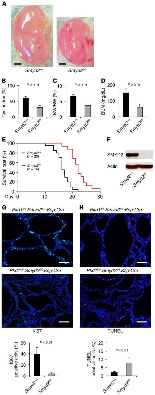 small resolution of double conditional knockout of smyd2 and pkd1 delayed renal cyst formati