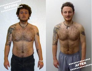Jamie R before & after