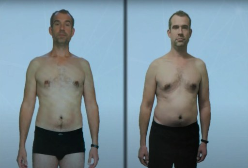 Dr van Tulleken before and after