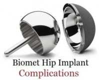 Biomet Hip Lawsuit